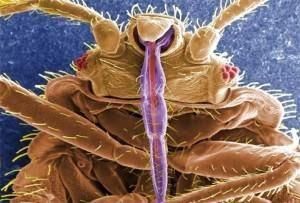 Bed bug in photo taken through high-powered microscope